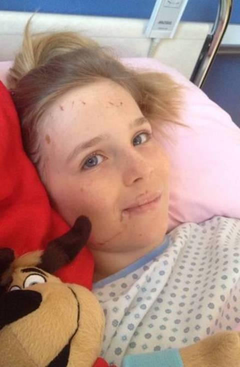 Freya Smith Carrington, who suffered an open fracture to her thigh and needs crutches to walk